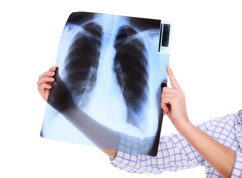 De nombreuses maladies professionnelles, liées à des substances nocives, affectent l'appareil respiratoire.
