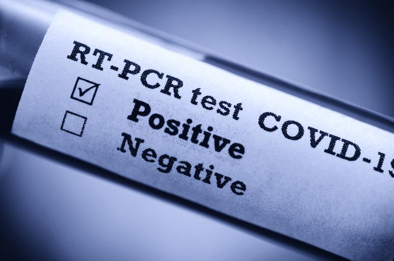 Le risque de développer une forme grave de la COVID-19 est fortement lié à l'état de santé du patient.